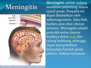 persyaratan umroh, persyaratan vaksin meningitis, vaksin meningitis umroh